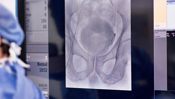 Prostate Artery Embolisation X-ray